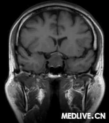 图1:mri扫描证实垂体巨腺瘤.