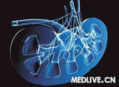 含钆造影剂与肾源性系统性纤维化 --> 药学之窗