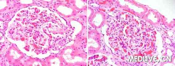 局灶性节段性肾小球硬化he染色