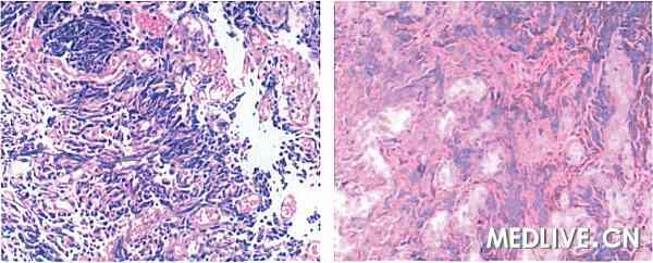 图1为光镜下见细胞形态符合小细胞神经内分泌癌