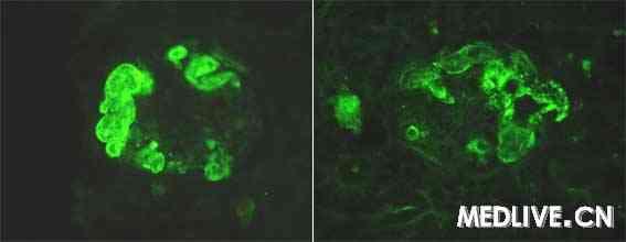 c3免疫荧光染色