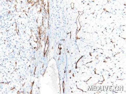 瘤免疫组化染色