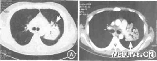 继发HPS的肺结核并淋巴结结核