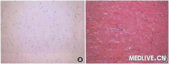 心肌肥大细胞手绘图