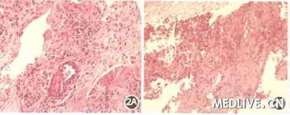 6月8日)复查ct双肺见多发斑片状及条索状密度增高影