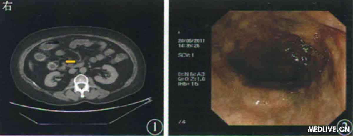 (图1 入院前小肠计算机断层扫描可见血管钙化影(黄色箭头所示) &nbsp