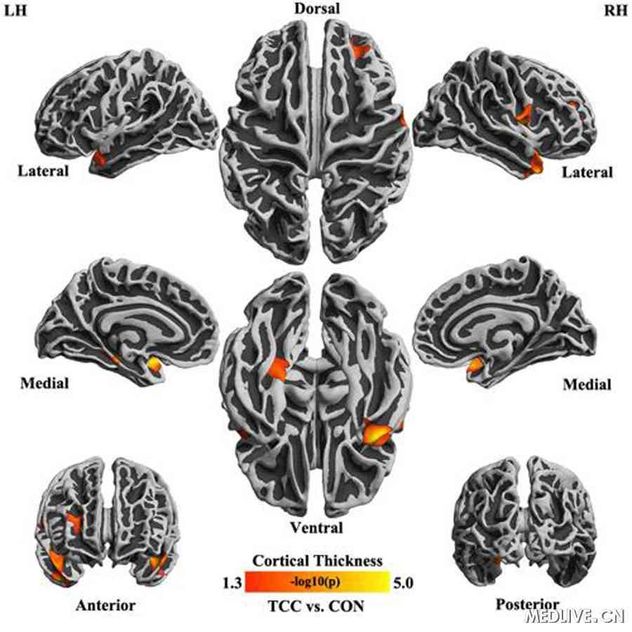 医学大脑结构图解剖图