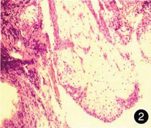 慢性食炎症状_食管下段齿状线处粘膜慢性炎伴灶区鳞状上皮轻度异型增生怎样治疗