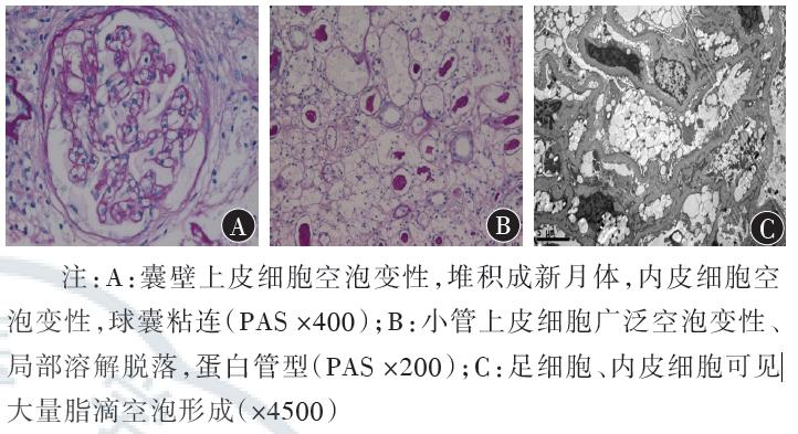 肝脏组织超微结构