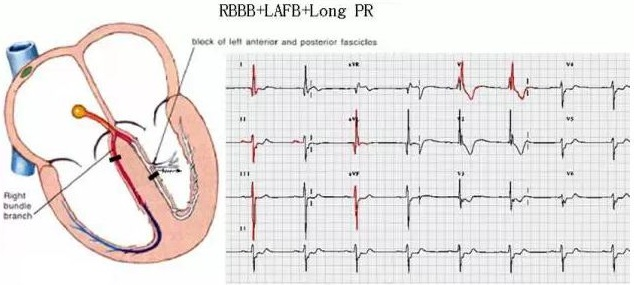 e学术 前沿资讯 > 详细  (4)颈动脉窦过敏综合征