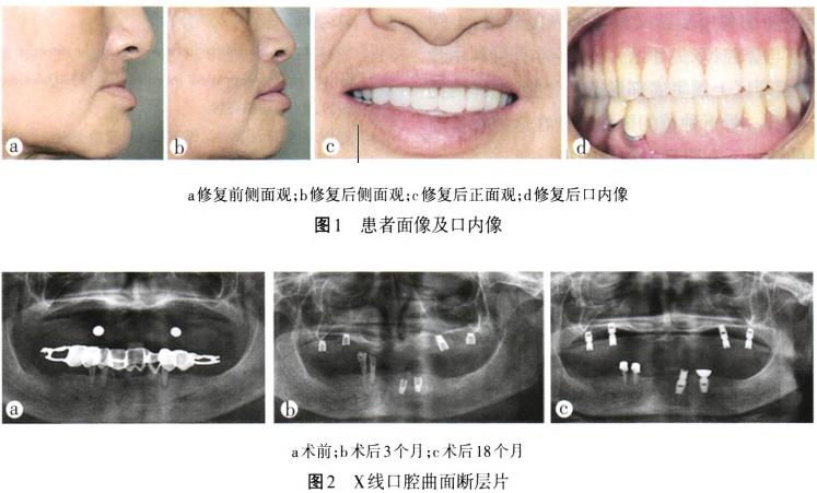 拔牙缝合方法图解