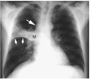 """S""征,可见纵隔淋巴结增大( 大箭头)   A. 胸片显示右上叶大的厚"