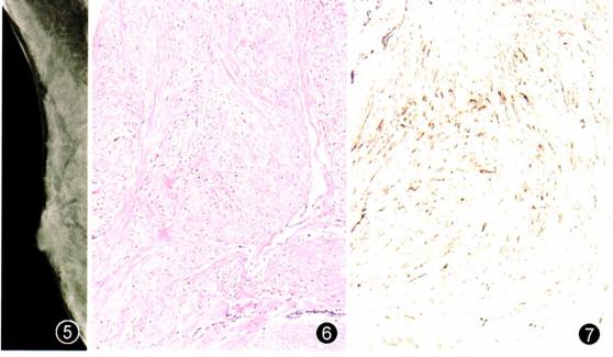 乳腺成 肌纤维 细胞瘤二例