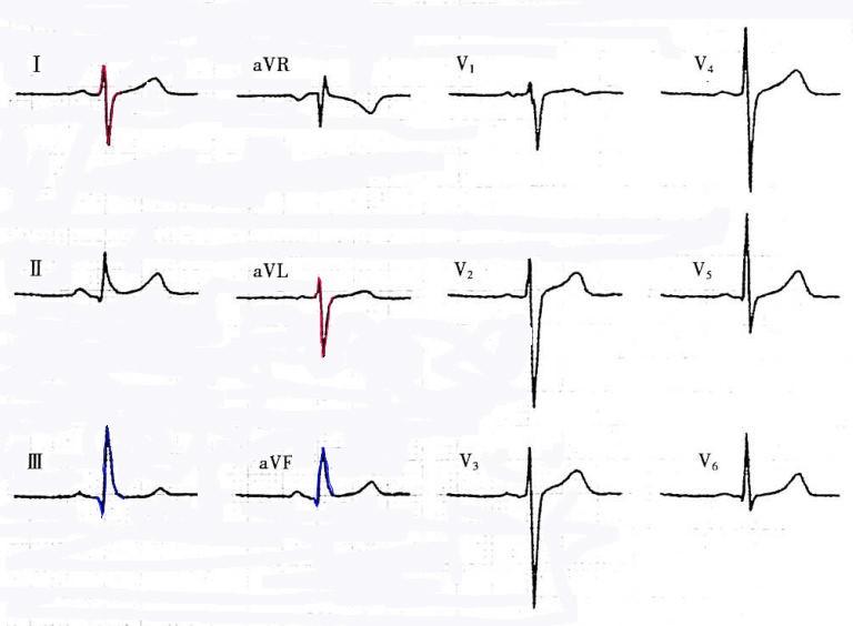 电路 电路图 电子 原理图 768_564